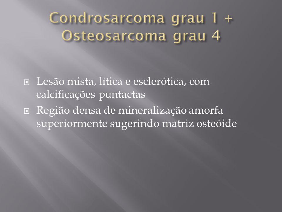 Lesão mista, lítica e esclerótica, com calcificações puntactas Região densa de mineralização amorfa superiormente sugerindo matriz osteóide