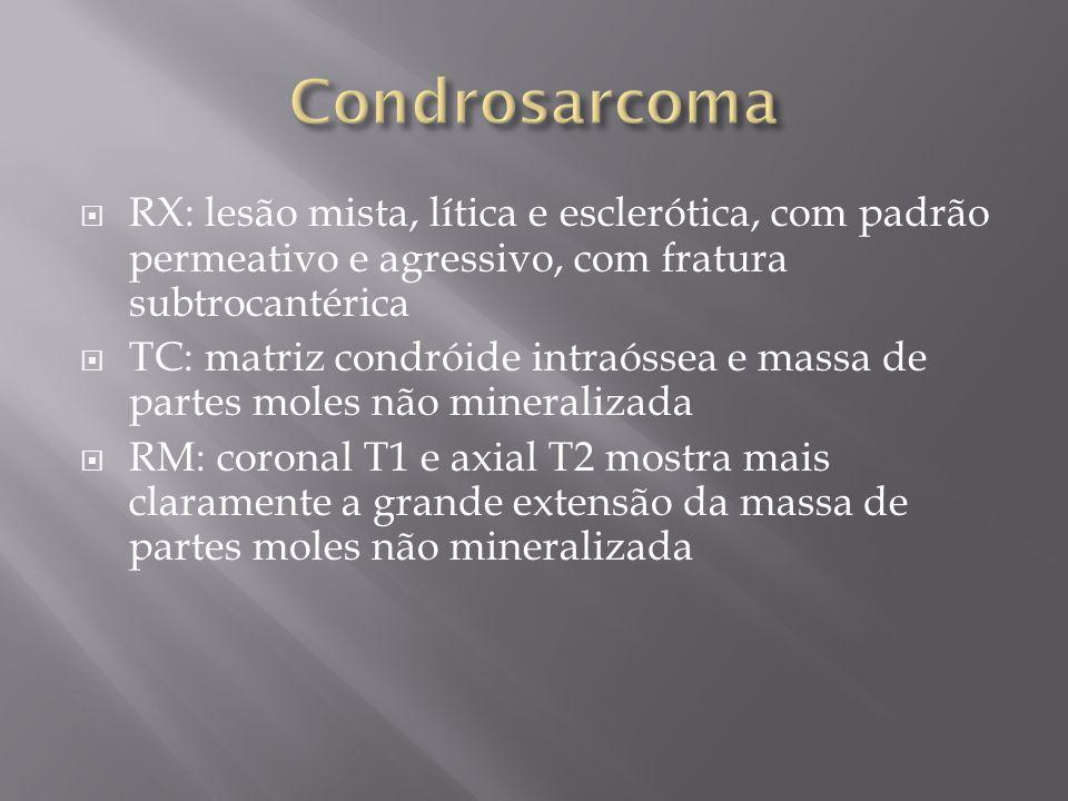 RX: lesão mista, lítica e esclerótica, com padrão permeativo e agressivo, com fratura subtrocantérica TC: matriz condróide intraóssea e massa de parte
