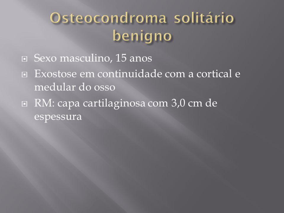 Sexo masculino, 15 anos Exostose em continuidade com a cortical e medular do osso RM: capa cartilaginosa com 3,0 cm de espessura