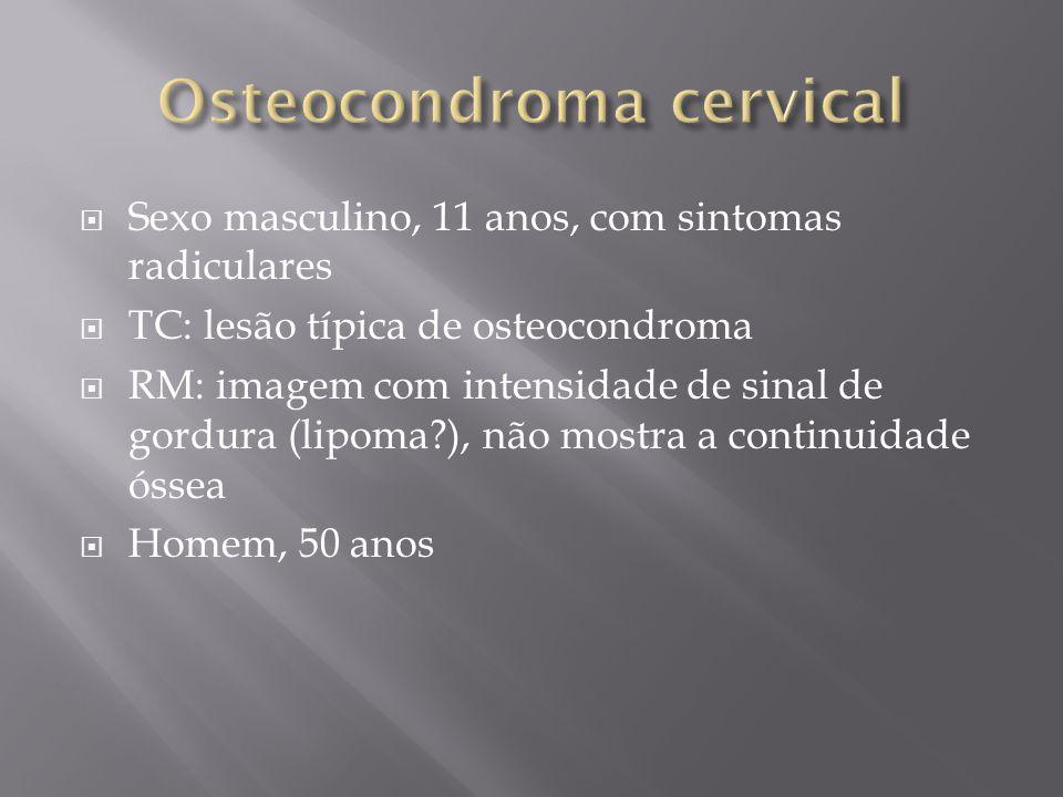 Sexo masculino, 11 anos, com sintomas radiculares TC: lesão típica de osteocondroma RM: imagem com intensidade de sinal de gordura (lipoma?), não most