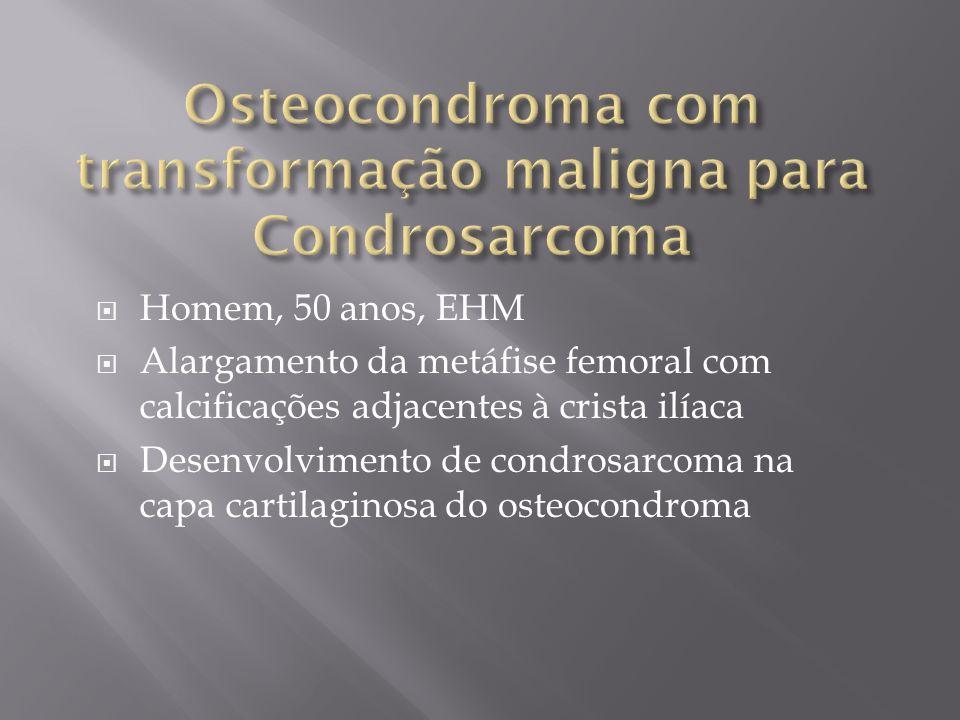 Homem, 50 anos, EHM Alargamento da metáfise femoral com calcificações adjacentes à crista ilíaca Desenvolvimento de condrosarcoma na capa cartilaginos