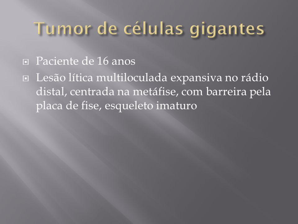 Sexo feminino, 17 anos Osteólise infiltrativa, tunelização da cortical, periostite linear