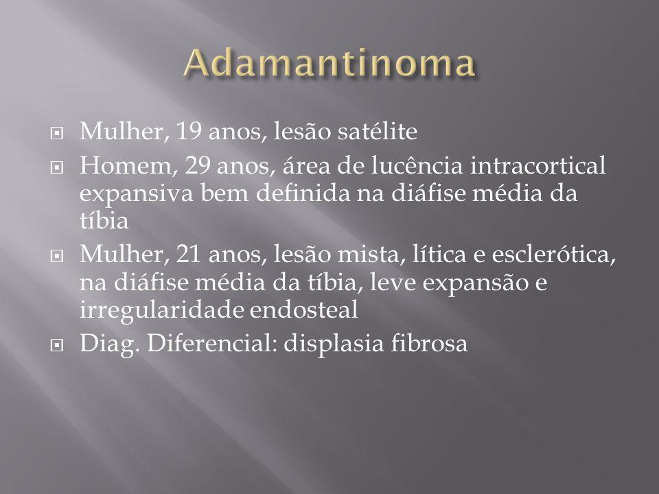 Mulher, 19 anos, lesão satélite Homem, 29 anos, área de lucência intracortical expansiva bem definida na diáfise média da tíbia Mulher, 21 anos, lesão
