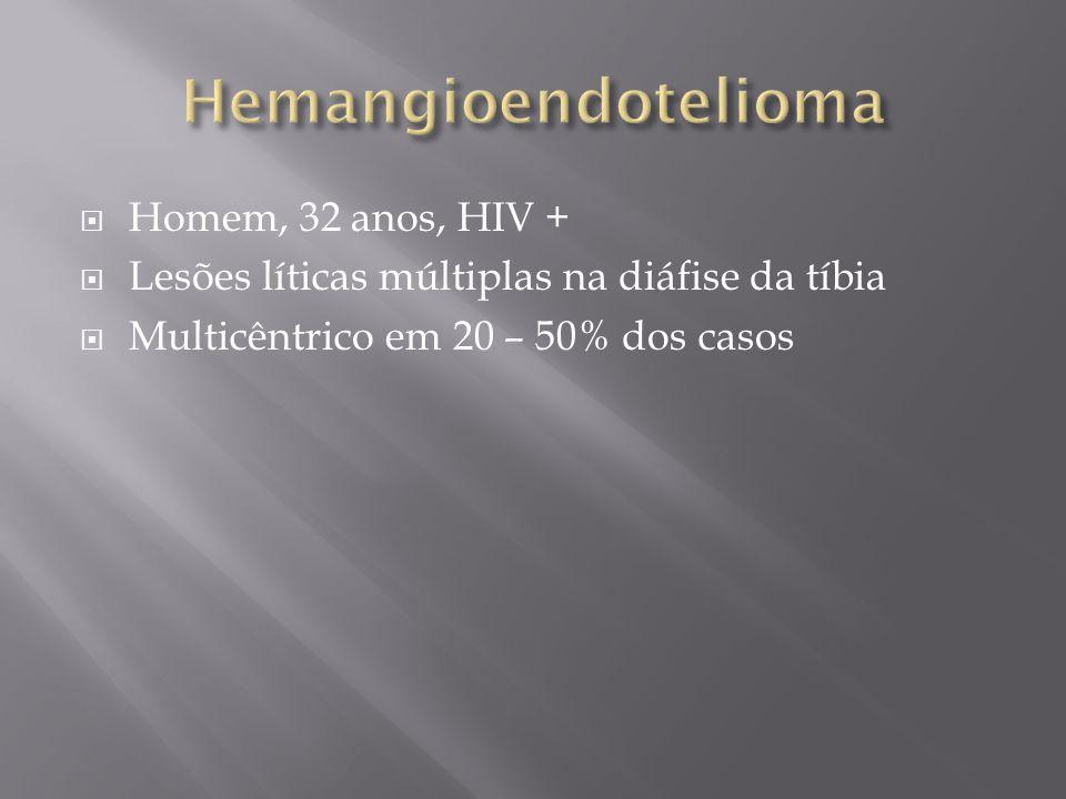 Homem, 32 anos, HIV + Lesões líticas múltiplas na diáfise da tíbia Multicêntrico em 20 – 50% dos casos