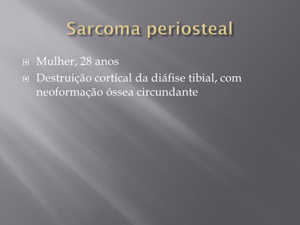 Mulher, 28 anos Destruição cortical da diáfise tibial, com neoformação óssea circundante