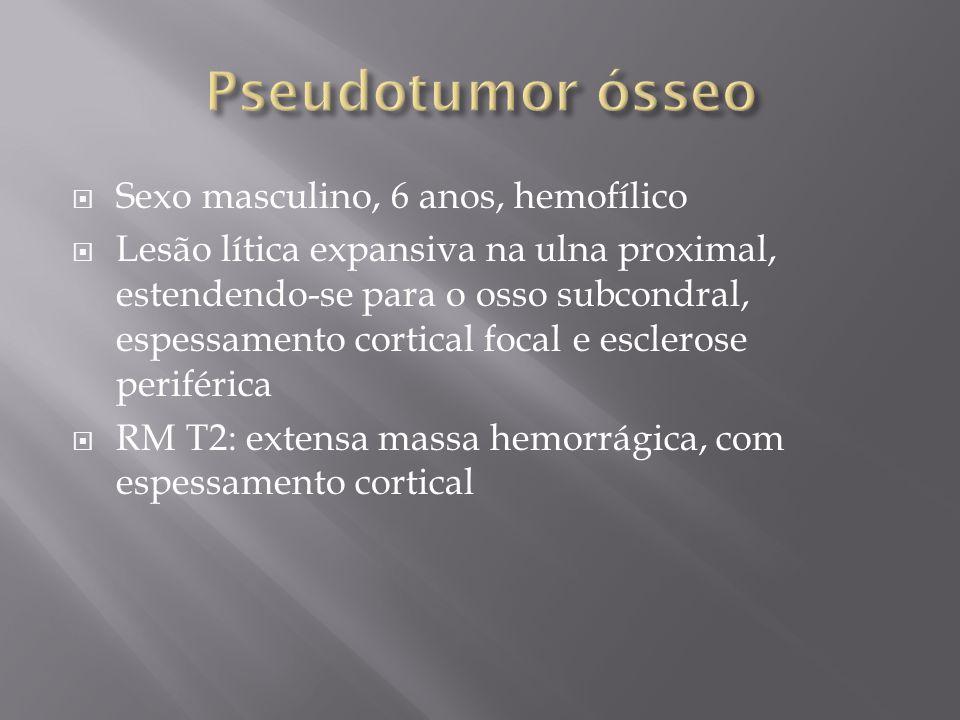 Sexo masculino, 6 anos, hemofílico Lesão lítica expansiva na ulna proximal, estendendo-se para o osso subcondral, espessamento cortical focal e escler