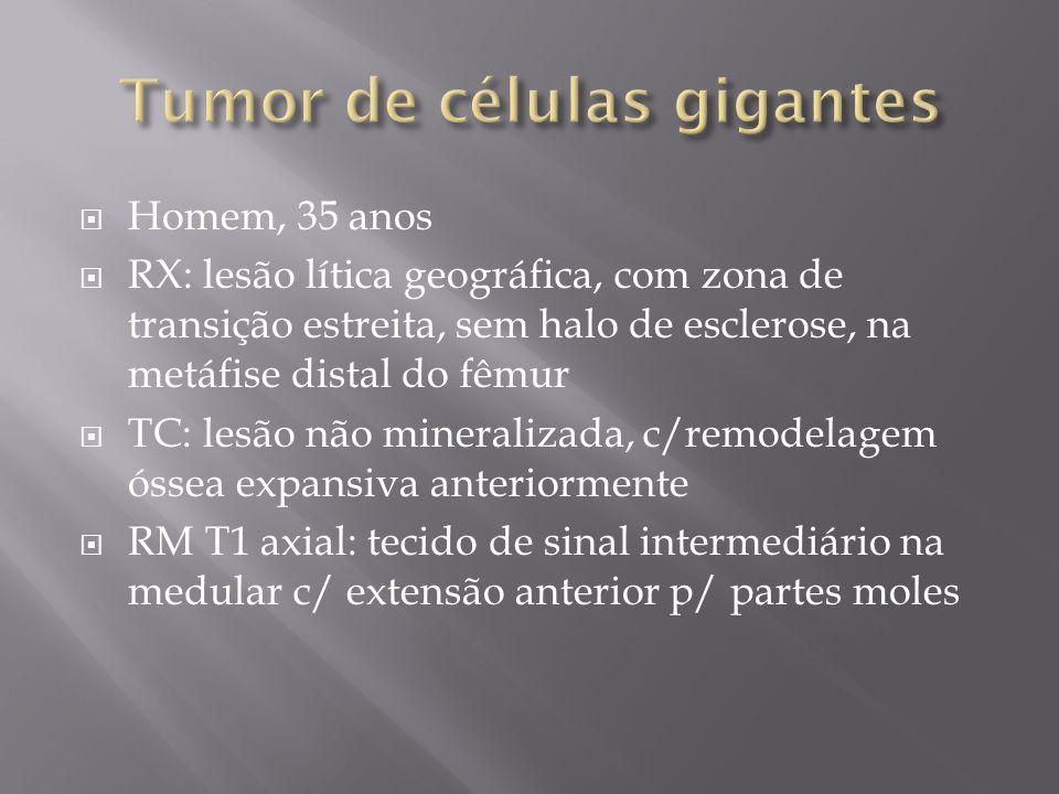 Homem, 35 anos RX: lesão lítica geográfica, com zona de transição estreita, sem halo de esclerose, na metáfise distal do fêmur TC: lesão não mineraliz