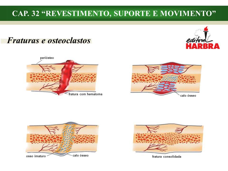 CAP. 32 REVESTIMENTO, SUPORTE E MOVIMENTO Fraturas e osteoclastos periósteo fratura com hematoma calo ósseo osso imaturo calo ósseo fratura consolidad