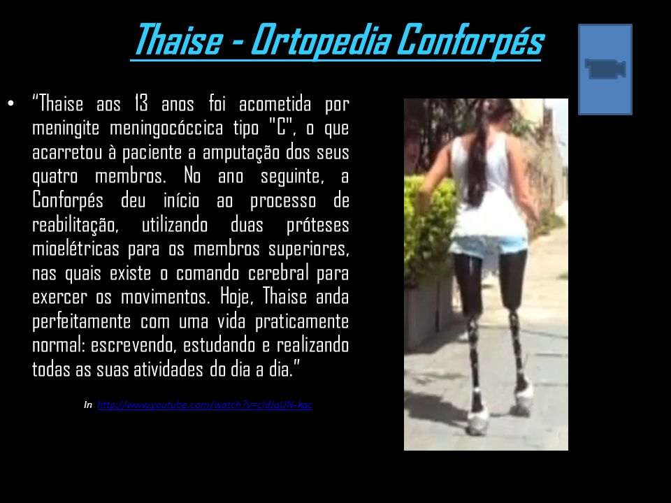 Thaise - Ortopedia Conforpés Thaise aos 13 anos foi acometida por meningite meningocóccica tipo