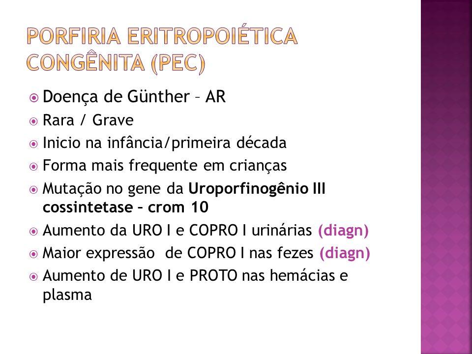Doença de Günther – AR Rara / Grave Inicio na infância/primeira década Forma mais frequente em crianças Mutação no gene da Uroporfinogênio III cossint