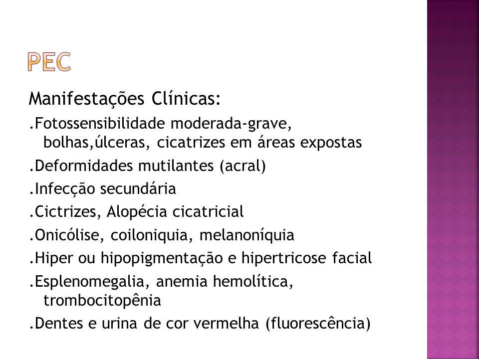 Manifestações Clínicas:.Fotossensibilidade moderada-grave, bolhas,úlceras, cicatrizes em áreas expostas.Deformidades mutilantes (acral).Infecção secun