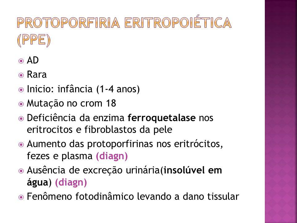 AD Rara Inicio: infância (1-4 anos) Mutação no crom 18 Deficiência da enzima ferroquetalase nos eritrocitos e fibroblastos da pele Aumento das protopo