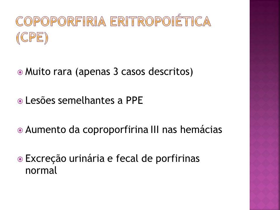 Muito rara (apenas 3 casos descritos) Lesões semelhantes a PPE Aumento da coproporfirina III nas hemácias Excreção urinária e fecal de porfirinas norm