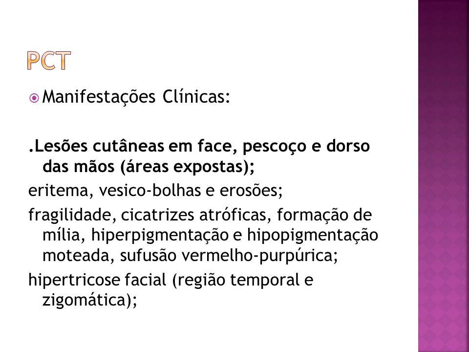 Manifestações Clínicas:.Lesões cutâneas em face, pescoço e dorso das mãos (áreas expostas); eritema, vesico-bolhas e erosões; fragilidade, cicatrizes