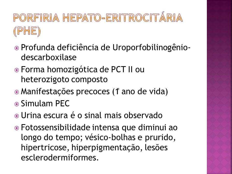 Profunda deficiência de Uroporfobilinogênio- descarboxilase Forma homozigótica de PCT II ou heterozigoto composto Manifestações precoces (1 ̊ ano de v