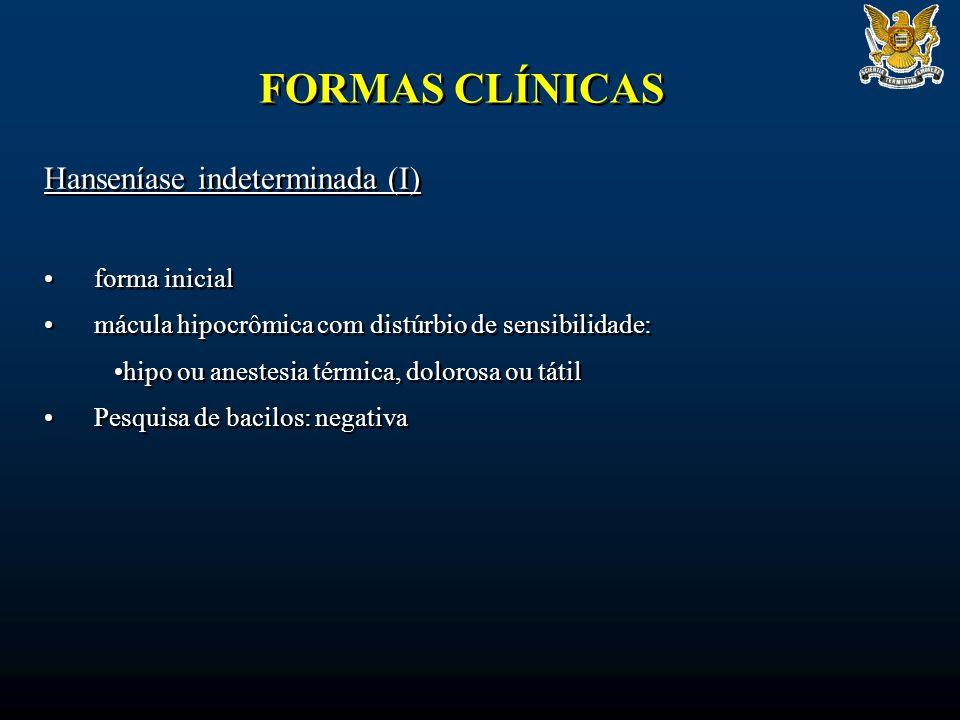 FORMAS CLÍNICAS Hanseníase indeterminada (I) forma inicial mácula hipocrômica com distúrbio de sensibilidade: hipo ou anestesia térmica, dolorosa ou t