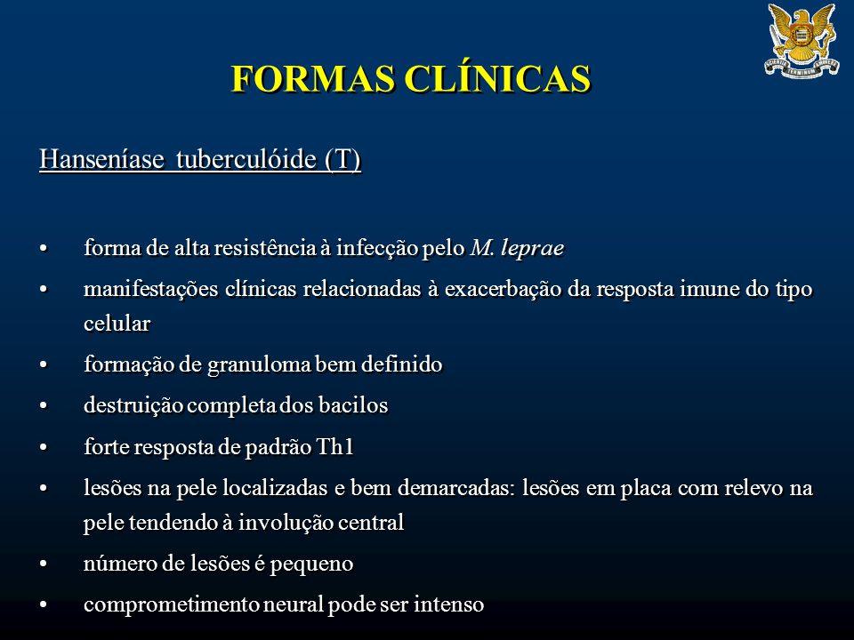 FORMAS CLÍNICAS Hanseníase tuberculóide (T) forma de alta resistência à infecção pelo M. leprae manifestações clínicas relacionadas à exacerbação da r