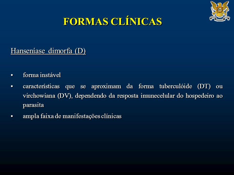 FORMAS CLÍNICAS Hanseníase dimorfa (D) forma instável características que se aproximam da forma tuberculóide (DT) ou virchowiana (DV), dependendo da resposta imunecelular do hospedeiro ao parasita ampla faixa de manifestações clínicas Hanseníase dimorfa (D) forma instável características que se aproximam da forma tuberculóide (DT) ou virchowiana (DV), dependendo da resposta imunecelular do hospedeiro ao parasita ampla faixa de manifestações clínicas