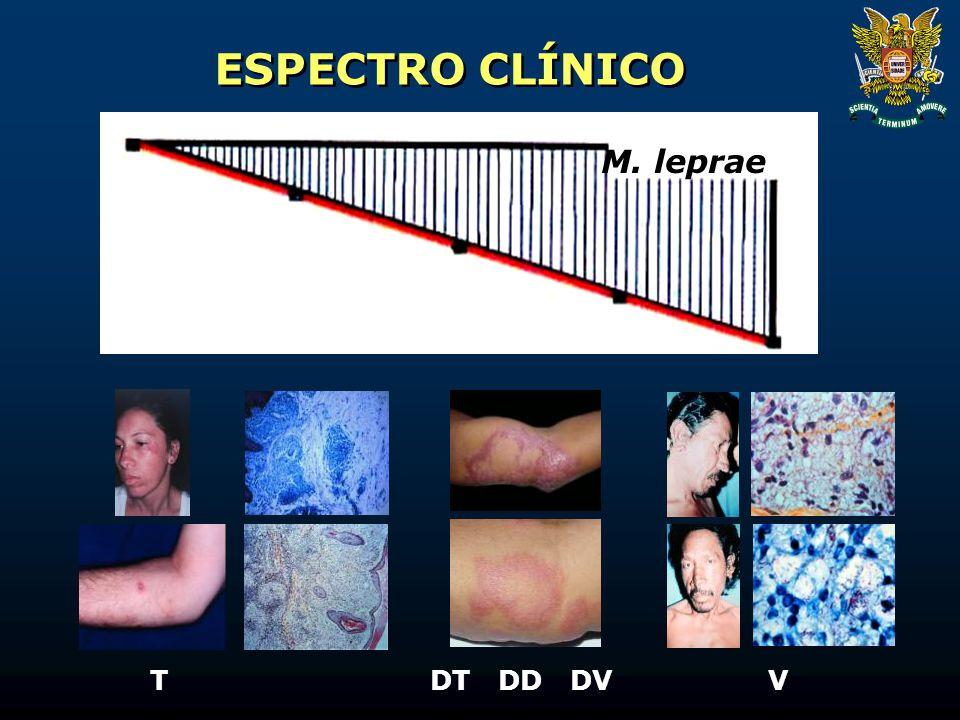 ESPECTRO CLÍNICO M. leprae TDTDDDVV