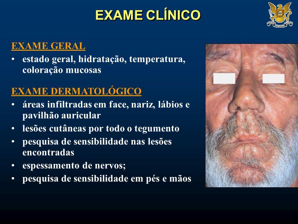 EXAME CLÍNICO EXAME GERAL estado geral, hidratação, temperatura, coloração mucosas EXAME DERMATOLÓGICO áreas infiltradas em face, nariz, lábios e pavi