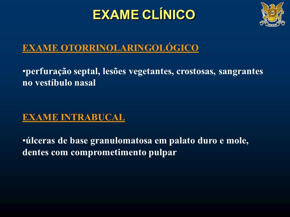 EXAME OTORRINOLARINGOLÓGICO perfuração septal, lesões vegetantes, crostosas, sangrantes no vestíbulo nasal EXAME INTRABUCAL úlceras de base granulomat