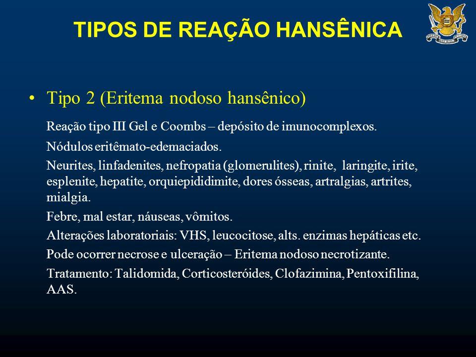 TIPOS DE REAÇÃO HANSÊNICA Tipo 2 (Eritema nodoso hansênico) Reação tipo III Gel e Coombs – depósito de imunocomplexos.