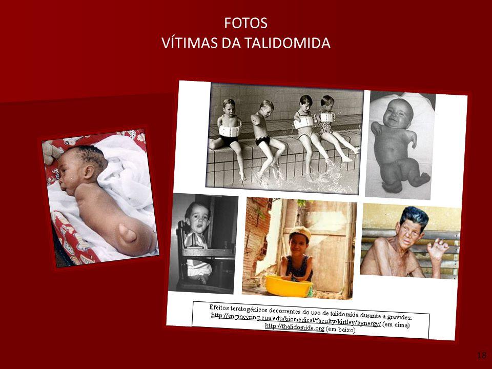 FOTOS VÍTIMAS DA TALIDOMIDA 18
