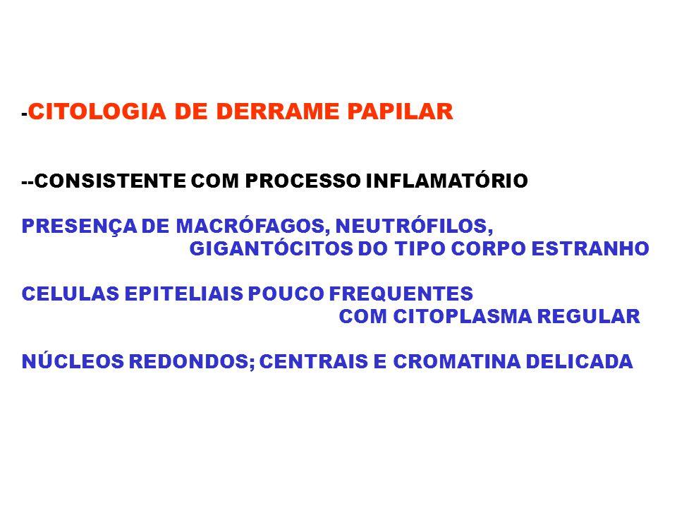 - CITOLOGIA DE DERRAME PAPILAR --CONSISTENTE COM PROCESSO INFLAMATÓRIO PRESENÇA DE MACRÓFAGOS, NEUTRÓFILOS, GIGANTÓCITOS DO TIPO CORPO ESTRANHO CELULA