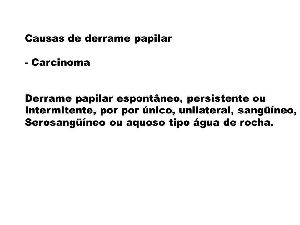 Causas de derrame papilar - Carcinoma Derrame papilar espontâneo, persistente ou Intermitente, por por único, unilateral, sangüíneo, Serosangüíneo ou
