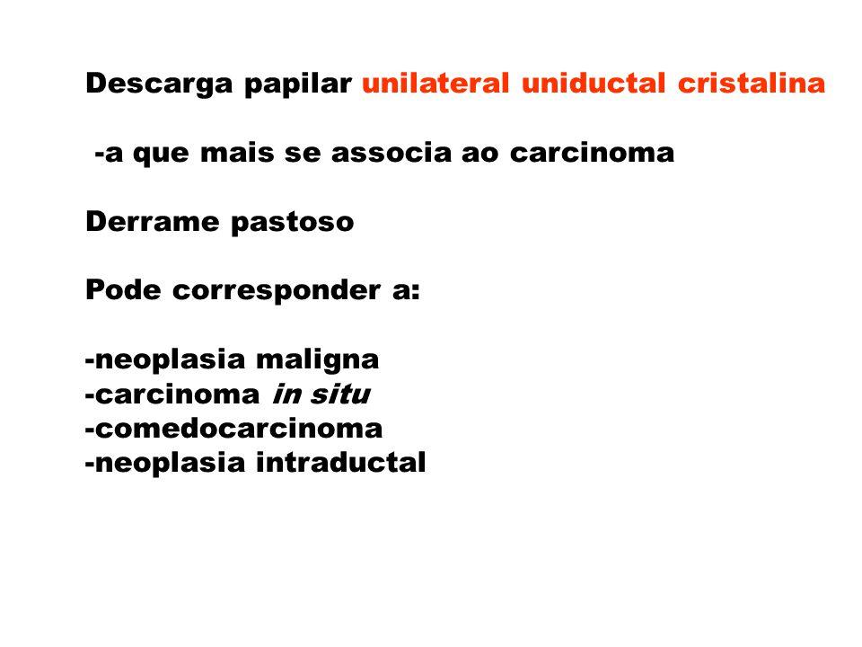 Descarga papilar unilateral uniductal cristalina -a que mais se associa ao carcinoma Derrame pastoso Pode corresponder a: -neoplasia maligna -carcinom