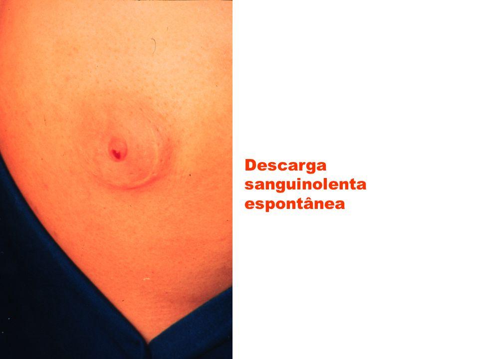 Tumores que dão hiperprolactinemia levando à galactorréia -adenoma hipofisário -tumor pulmonar (oat cell) -tumor renal -leiomioma uterino Síndromes associadas com galactorréia -Forbes-Albright (tumor intraselar) -Chiari-Frommel (galactorréia inapropriada pós-parto -Argonz del Castilho (galactorréia e amenorréia sem história de gestação prévia)