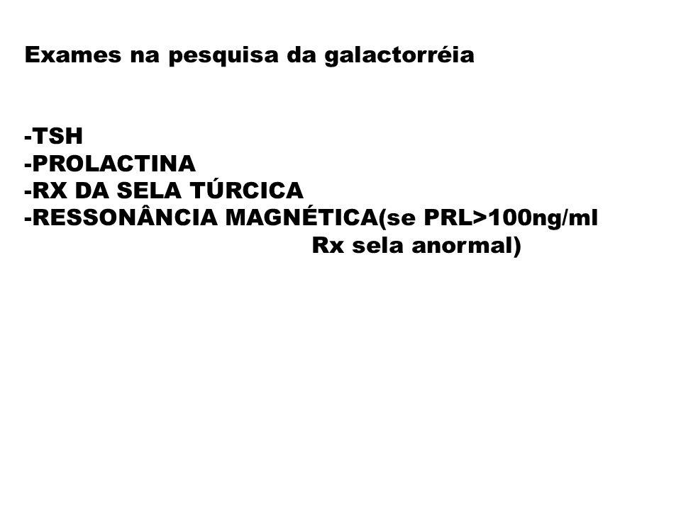 Exames na pesquisa da galactorréia -TSH -PROLACTINA -RX DA SELA TÚRCICA -RESSONÂNCIA MAGNÉTICA(se PRL>100ng/ml Rx sela anormal)