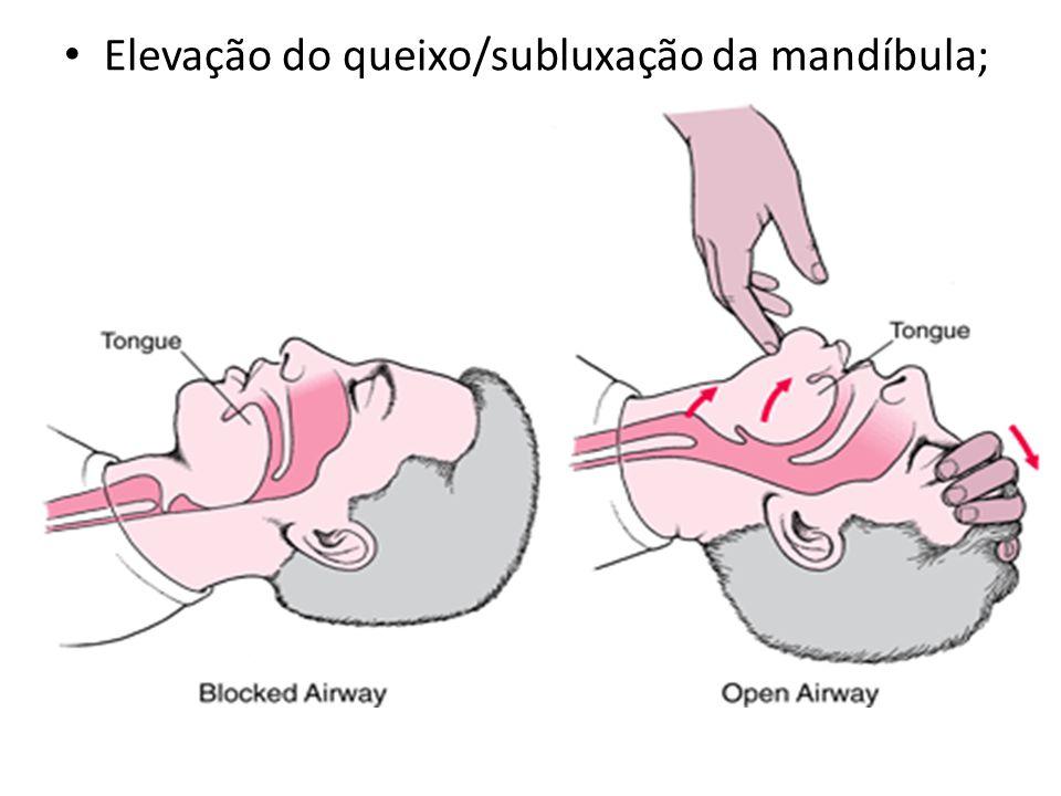 Elevação do queixo/subluxação da mandíbula;