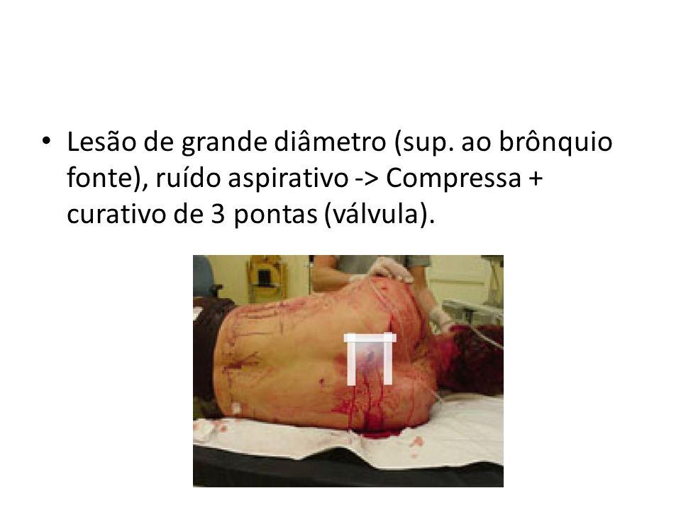Lesão de grande diâmetro (sup. ao brônquio fonte), ruído aspirativo -> Compressa + curativo de 3 pontas (válvula).