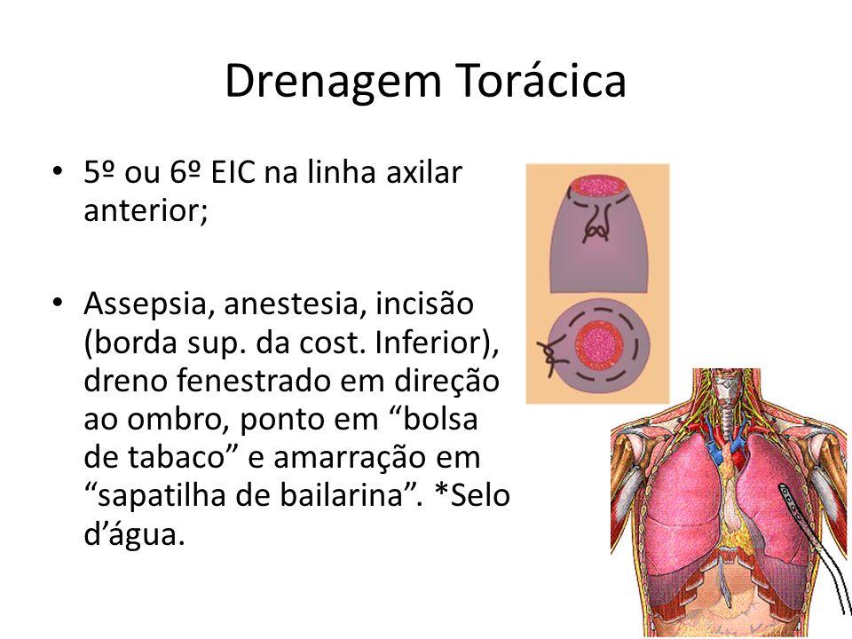 Drenagem Torácica 5º ou 6º EIC na linha axilar anterior; Assepsia, anestesia, incisão (borda sup. da cost. Inferior), dreno fenestrado em direção ao o