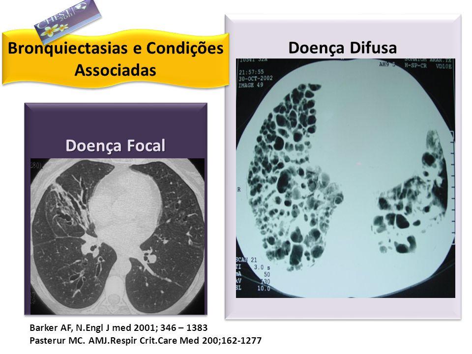 Doença Focal Pós Infecciosa: -Bacteriana -Micobacteria: TB ou MNTB Obstrução de Via aérea: -Corpo estranho -Alterações de estrutura brônquica -Obstruç