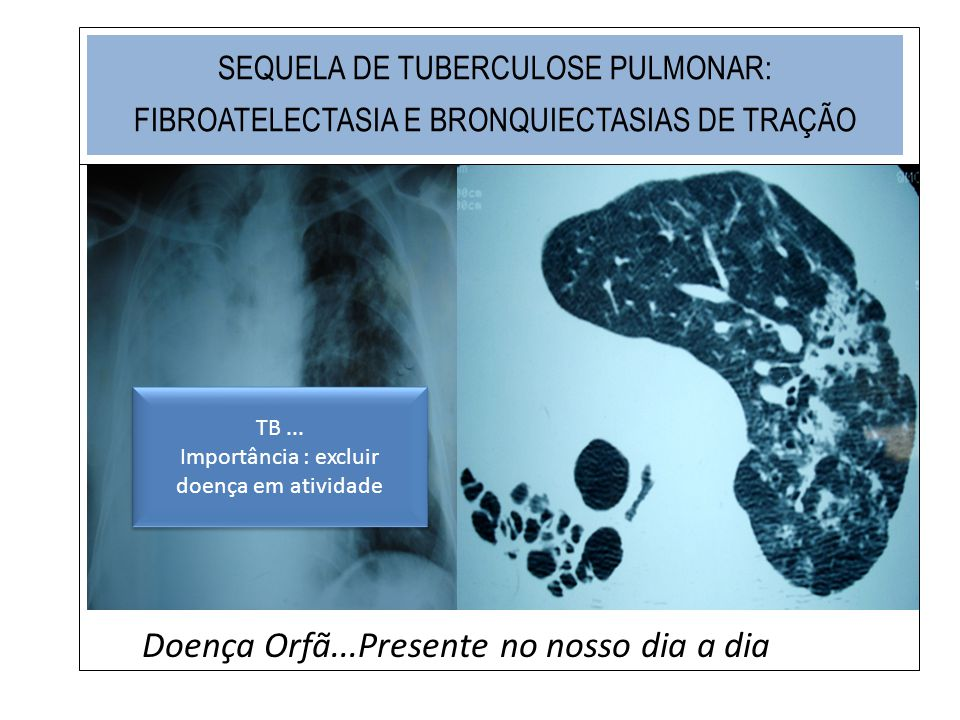 SEQUELA DE TUBERCULOSE PULMONAR: FIBROATELECTASIA E BRONQUIECTASIAS DE TRAÇÃO Doença Orfã...Presente no nosso dia a dia TB... Importância : excluir do