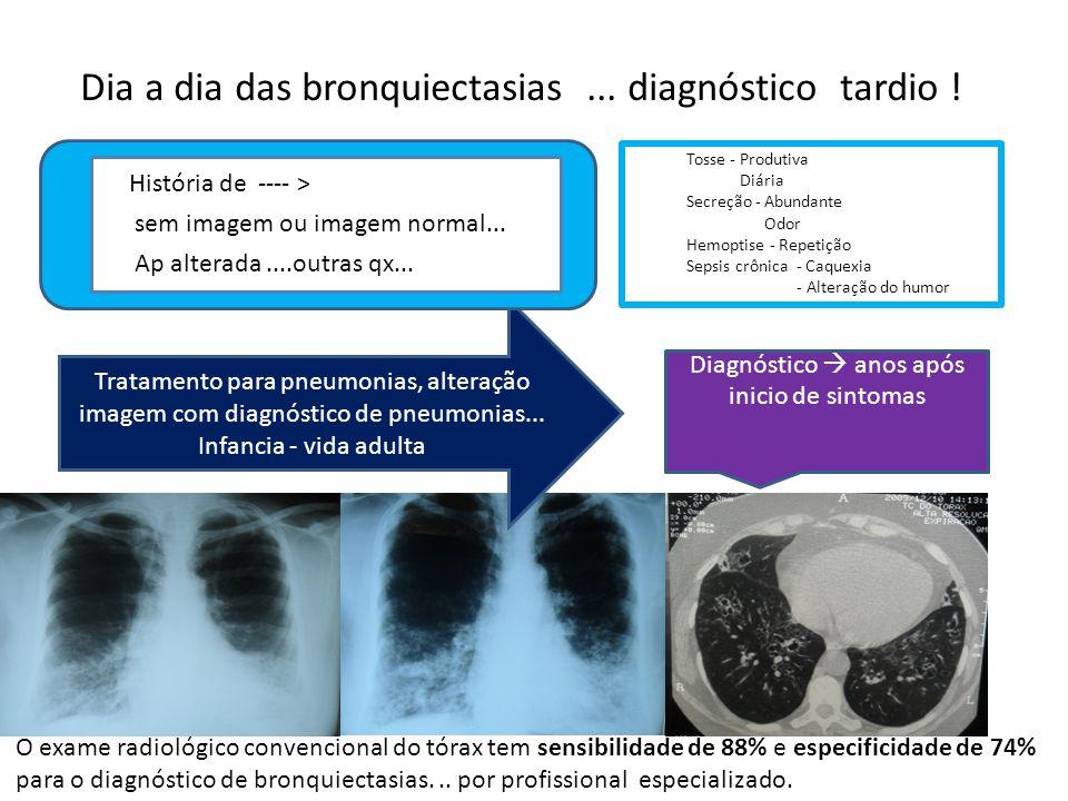 Tratamento para pneumonias, alteração imagem com diagnóstico de pneumonias... Infancia - vida adulta Diagnóstico anos após inicio de sintomas História
