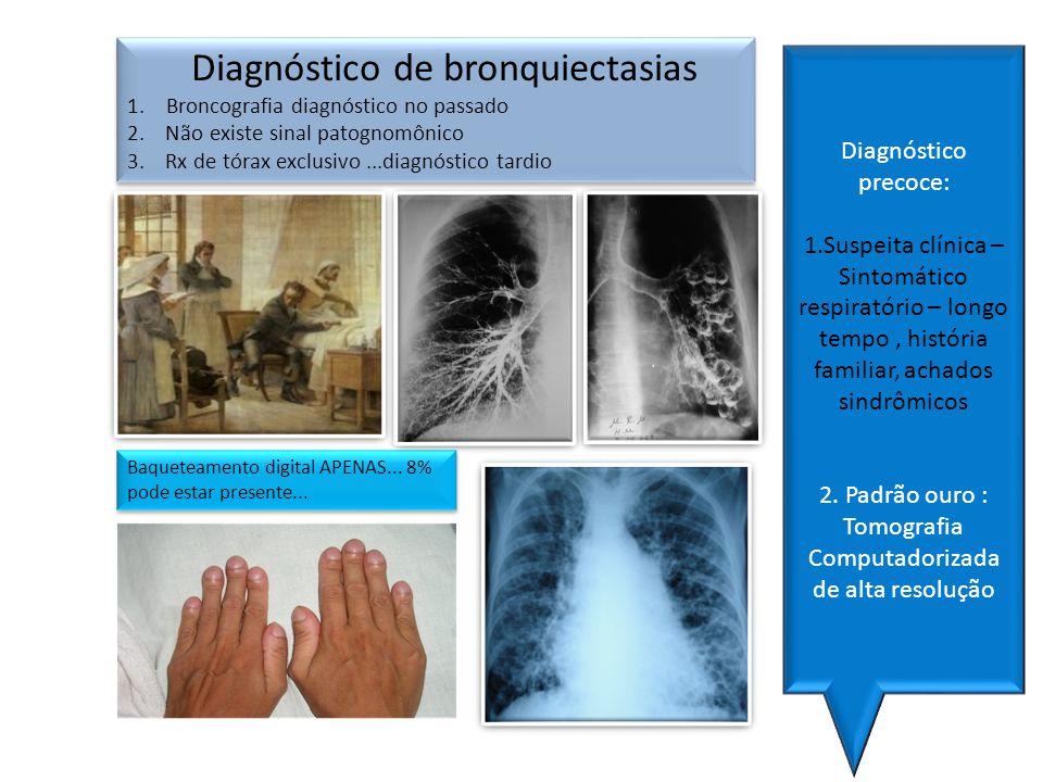 Diagnóstico de bronquiectasias 1.Broncografia diagnóstico no passado 2. Não existe sinal patognomônico 3. Rx de tórax exclusivo...diagnóstico tardio D
