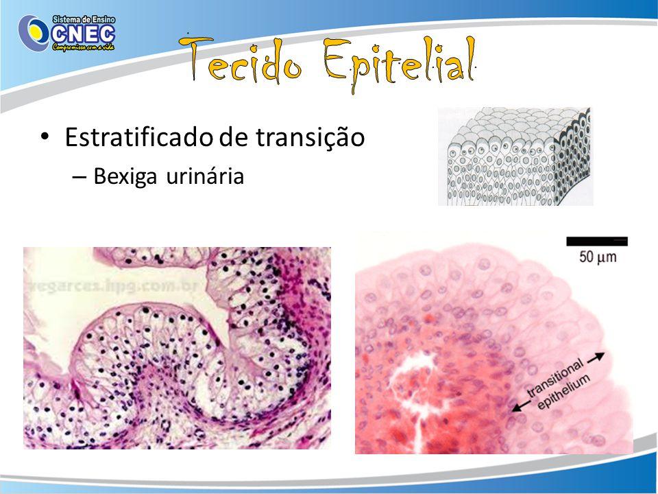 Estratificado de transição – Bexiga urinária