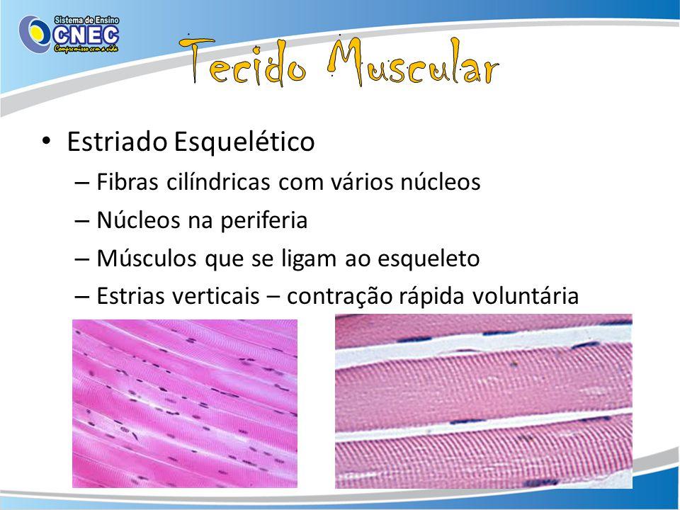 Estriado Esquelético – Fibras cilíndricas com vários núcleos – Núcleos na periferia – Músculos que se ligam ao esqueleto – Estrias verticais – contraç