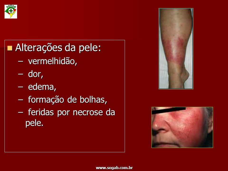 www.sogab.com.br Alterações da pele: Alterações da pele: – vermelhidão, – dor, – edema, – formação de bolhas, – feridas por necrose da pele.