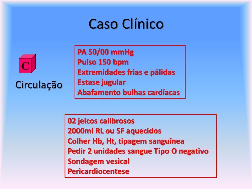 Caso Clínico Circulação PA 50/00 mmHg Pulso 150 bpm Extremidades frias e pálidas Estase jugular Abafamento bulhas cardíacas C 02 jelcos calibrosos 200