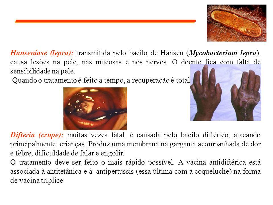 Hanseníase (lepra): transmitida pelo bacilo de Hansen (Mycobacterium lepra), causa lesões na pele, nas mucosas e nos nervos. O doente fica com falta d
