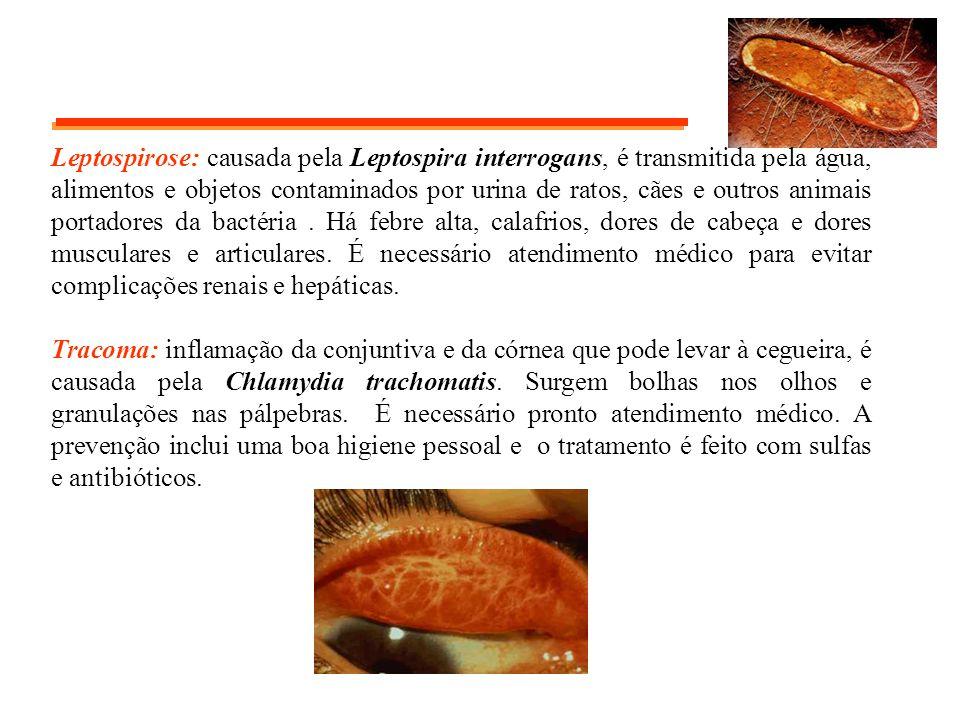 Leptospirose: causada pela Leptospira interrogans, é transmitida pela água, alimentos e objetos contaminados por urina de ratos, cães e outros animais