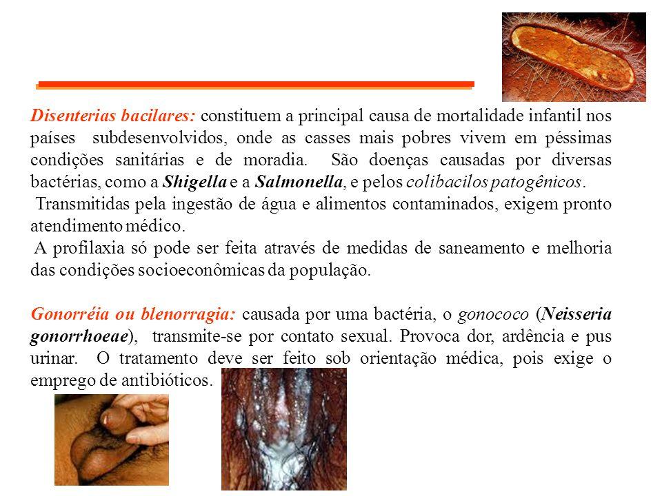 Disenterias bacilares: constituem a principal causa de mortalidade infantil nos países subdesenvolvidos, onde as casses mais pobres vivem em péssimas