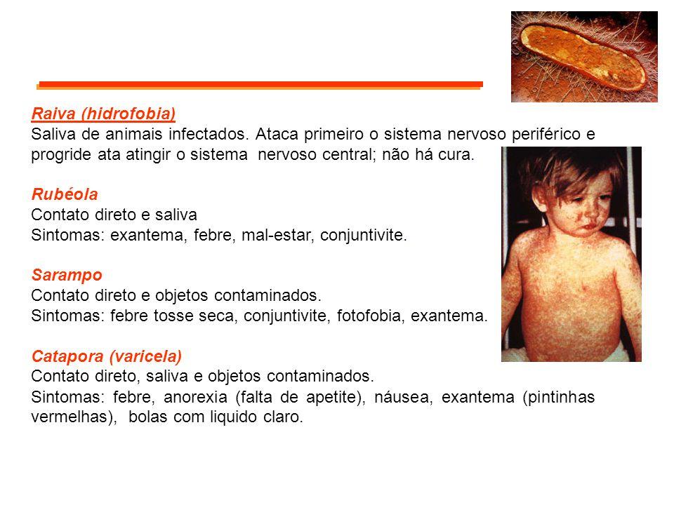 Raiva (hidrofobia) Saliva de animais infectados. Ataca primeiro o sistema nervoso periférico e progride ata atingir o sistema nervoso central; não há