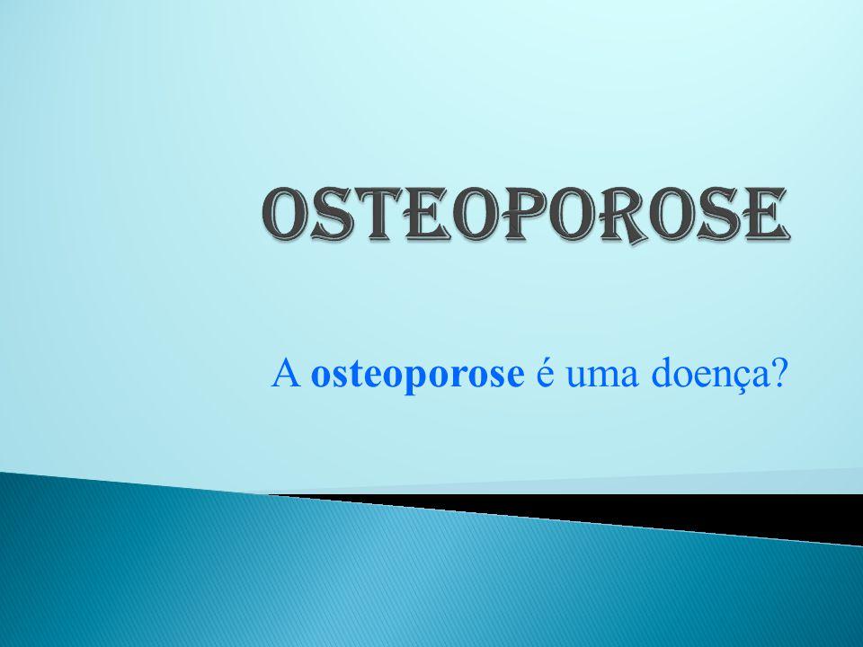 A osteoporose é uma doença que atinge os ossos.