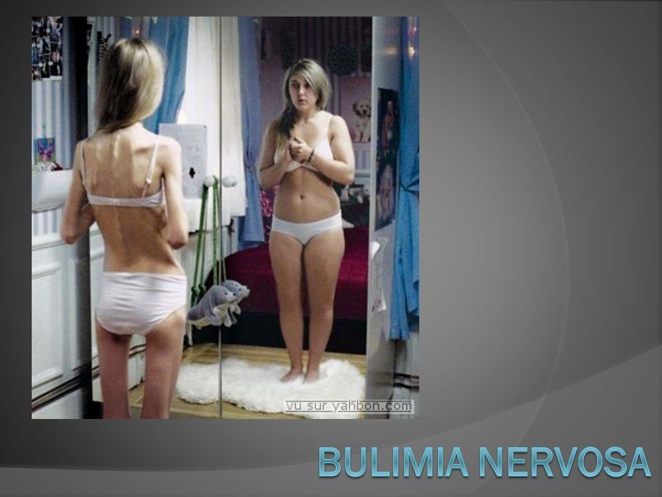 A bulimia nervosa é um transtorno alimentar que se caracteriza pela ingestão em grandes quantidades de alimentos, seguidos por métodos compensatórios como o vômito provocativo, o uso de laxantes e/ou diuréticos.