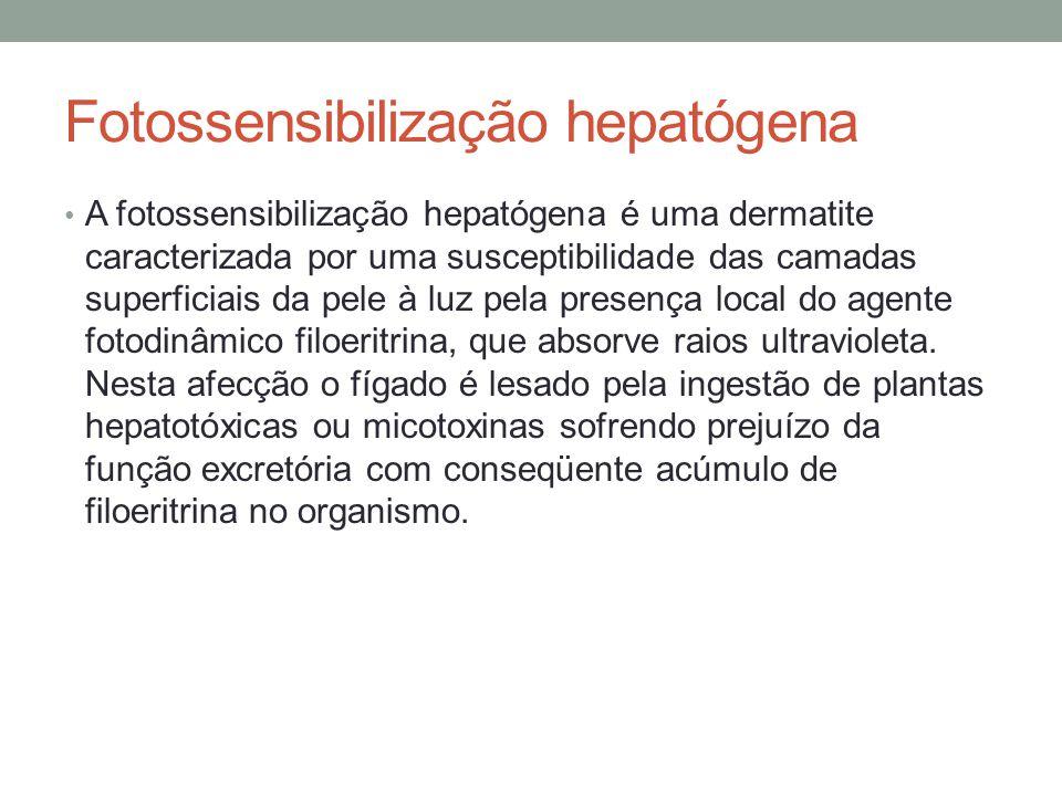 Fotossensibilização hepatógena A fotossensibilização hepatógena é uma dermatite caracterizada por uma susceptibilidade das camadas superficiais da pel